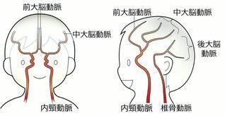 脳内の動脈