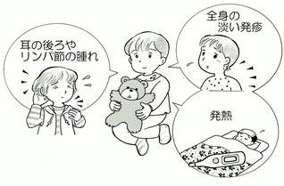 「風疹」の主な症状
