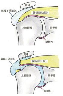 肩の構造(上)と腱板の断裂(下)